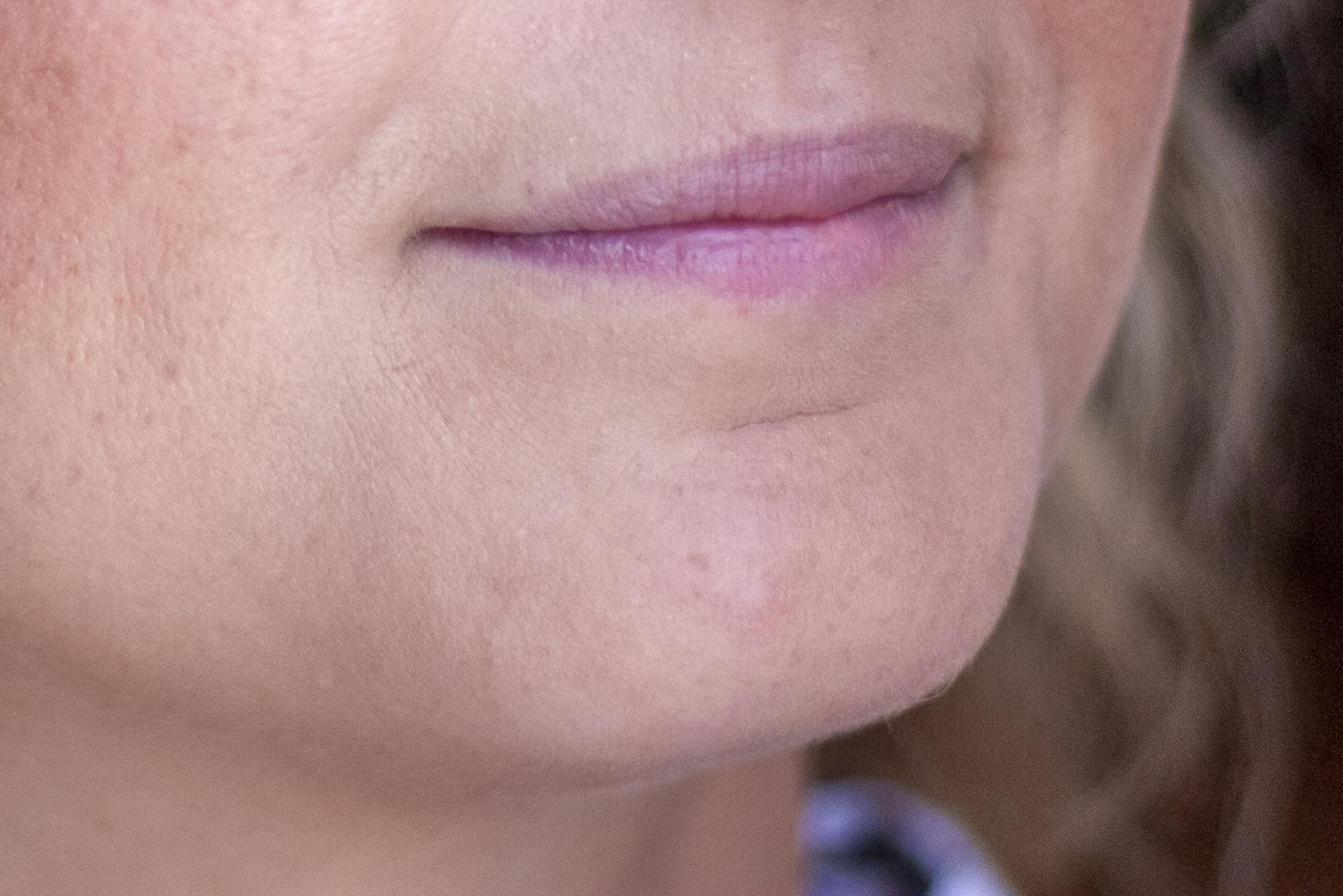 ritocco fotografico matrimonio difetto sulle labbra